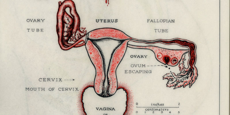 Preventive Strikes History of female cancers
