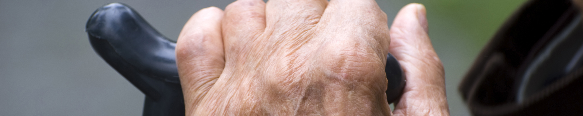 Hand of older patient