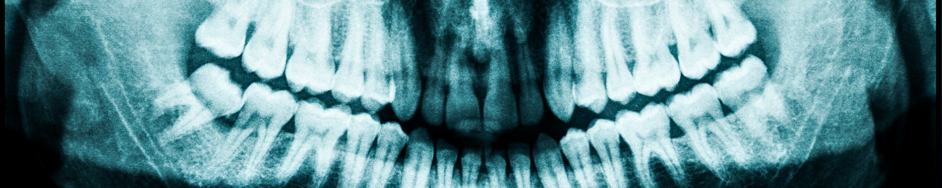 X ray of jaw and teeth