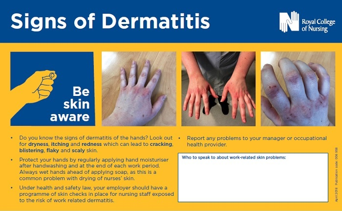 Signs of dermatitis poster